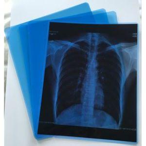 Пленка рентгеновская