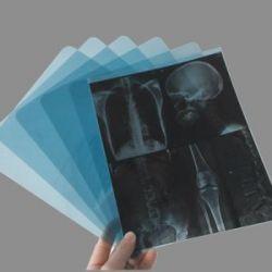 Плёнка для общей рентгенологии